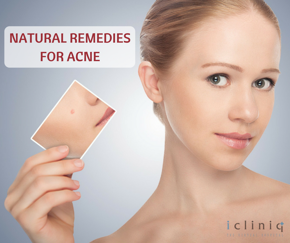 6 Quick and Crunchy Home Remedies for Acne