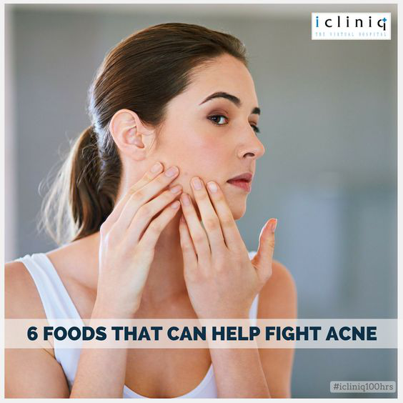 6 Foods That Can Help Fight Acne